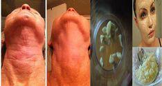 Tento brutálny cesnakový recept odstráni všetky Vaše vrásky už za krátkych 7 dní !!! Toto musíte naozaj vyskúšať! - Báječný lekár