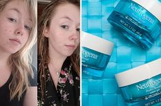 41 Affordable But Effective Skincare Products To Help You Start A Routine Oily Skin Care, Skin Care Regimen, Skin Care Tips, Cystic Acne Treatment, Skin Treatments, Tumblr Posts, Acne Out, Greasy Skin, Skin Care Remedies