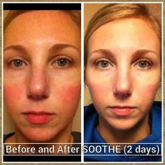 One of our consultants used Soothe and two years later her redness was gone.