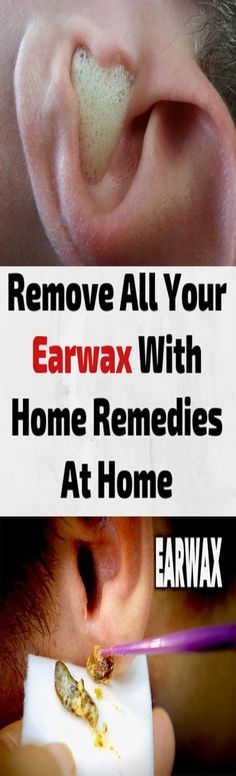 Hydrogen Peroxide Can Remove Ear Wax and Clear Ear Infections: How to Use it - medicine health life Health Remedies, Home Remedies, Natural Remedies, Healthy Beauty, Healthy Tips, Healthy Facts, Healthy Recipes, Diet Recipes, Healthy Food