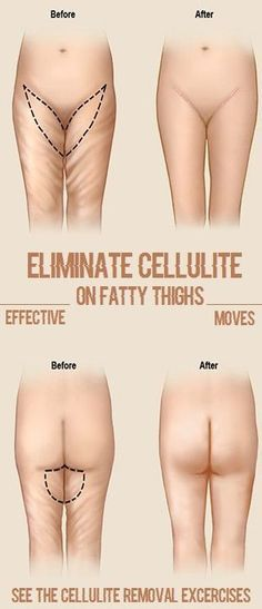 What is Cellulite? In short, cellulite is a type of fat. However, it seems to have it's own unique, dimply appearance doesn't it?