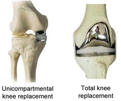 total knee replacement post op pain management Makoplasty partial knee replacement testimonial - 1 year post op 1 wk post op total joint replacement for you don't have to suffer from it post op pain.
