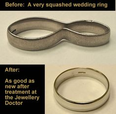 Fancy Customer had accident with wedding ring No problem for the