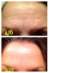 This is proof that SeneGence works! I know because that is my picture!!!! Skincare Collection - normal to dry Anti-Aging Collection Anti -  Wrinkle Silk MakeSense Collection ShadowSense Lash Sense and Under Sense LipSense stay on lip color up to 8 - 10 hours  Like my fb page Sweet Cheeks a Rainbow of Colors Message me for your free MAKEOVER                             and your products