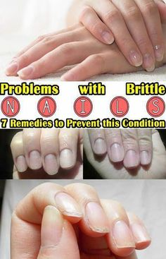 Problems with Brittle Nails? 7 Remedies to Prevent this Condition : Problems with brittle nails 7 remedies to prevent this condition Argan Oil For Hair Loss, Best Hair Loss Shampoo, Biotin For Hair Loss, Biotin Hair, Hair Shampoo, Baby Hair Loss, Hair Loss Cure, Hair Loss Remedies, Stop Hair Loss
