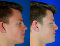 Brock, 16 Procedures: Rhinoplasty Results: Brock is a 16 year-old male who presented with a history of nasal trauma 2 years ago, resulting in deformity of the nose. He did not seek medical attention at the time of the injury. As the swelling and bruising from the injury resolved, it became apparent that there was significant deformity of the structure of the nose. In addition, he noted persistent nasal obstruction, primarily affecting the left side of his nose. He was also having problems…