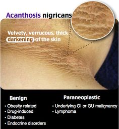 Acanthus is Migrans rash derm Pediatric Nurse Practitioner, Family Nurse Practitioner, Dermatology Nurse, Acanthosis Nigricans, Advanced Nursing, Nursing Assessment, Nursing Process, Pediatric Nursing, Oncology Nursing