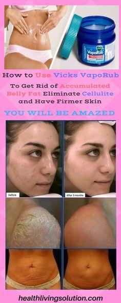 vicks vapor rub to eliminate cellulite, skin wrinkles.You can find Uses for vicks vapor rub and more on our website.vicks vapor rub to eliminat. Causes Of Cellulite, Cellulite Wrap, Cellulite Exercises, Cellulite Remedies, Reduce Cellulite, Cellulite Workout, Vicks Vaporub, Vicks Vapor Rub Uses, Wrinkled Skin
