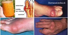 The buildup of uric acid in the bloodstream leads to a condition known as gout. This is very painful chronic condition just like arthritis where the uric acid accumulation creates . Arthritis Remedies, Rheumatoid Arthritis, Arthritis Diet, Arthritis Exercises, Vicks Vaporub, Gota A Gota, Clean Your Liver, How To Cure Gout, Types Of Arthritis