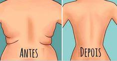 Exercícios para gordura nas costas