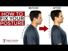 How to get rid of muscle knots in your neck shoulders and back. Best tips and exercises to eliminate muscle knots and trigger points at home. Neck And Shoulder Exercises, Shoulder Posture, Neck And Shoulder Pain, Shoulder Muscles, Shoulder Workout, Doctor Of Physical Therapy, Physical Therapy Exercises, Fix Your Posture, Bad Posture