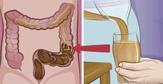 Je dikke darm is je dankbaar. Het is een veel voorkomend probleem: verstopte darmen, darmontsteking of het prikkelbaredarmsyndqoom.