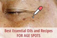 Age spots, also known as solar lentigines or liver spots, are generally spots appearing on the skin that are brown, grey or black in color and vary in size. Age spots are generally seen over Age Spots On Face, Brown Spots On Skin, Skin Spots, Brown Skin, Liver Spots On Hands, Black Spots On Face, Age Spots Essential Oils, Best Essential Oils, Essential Oil Uses