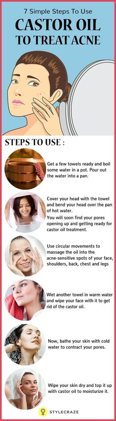 In case you are fed up of those acne scars on your face and couldn't do much about it, castor oil is something you should start using right away!   Want to know how this wonder oil helps in treating acne? Then go ahead and read this post!
