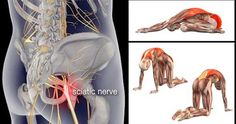 8 Exercises for Sciatica and Lower Back Pain Relieve If you suddenly start feeling unexplainable pain in your buttock, lower back or thigh, chances are that your sciatic nerve is not doing quite well. The sciatic nerve is the largest single nerve Sciatica Stretches, Sciatica Relief, Sciatic Pain, Sciatic Nerve, Nerve Pain, Pain Relief, Scoliosis Exercises, Hip Pain, Low Back Pain