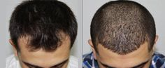 Before and after photo of recent client. We can provide you with phone numbers of our past clients, you can ask directly to them about procedure done at ésthetika. whether they are satisfied with their choice or no. We believe in complete transparency with our clients. - ésthetika  #hairloss #hairtransplants #hairrestoration #esthetika