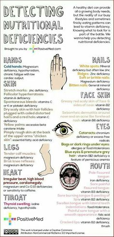 Malnutrition lack of vitamin