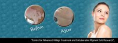 VitiligoHolla MelanoSite Both medical and surgical management is done at our centre. Treatment is decided as per vitiligo's present state, whether stable or unstable and extent of vitiligo etc. Both modalities are effective