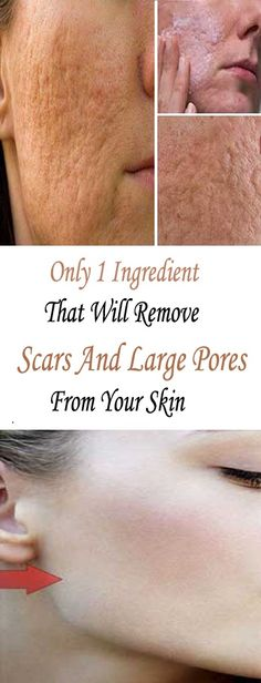 Only 1 Ingredient That Will Remove Scars And Large Pores From Your Skin