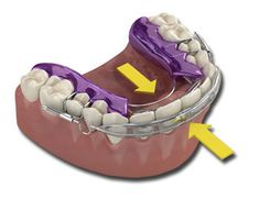 teeth implant - http://www.nowperfect.com/