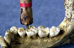 Dentistry has come a long way! Thank Goodness! www.stlouis-cosmeticimplantdentist.com