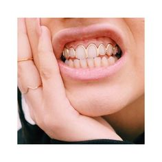 Shared by Nuru Angie. Find images and videos about gold and teeth on We Heart It - the app to get lost in what you love. Girl Grillz, Grillz Gold, Bling Bling, Gold Slugs, Tooth Gem, Grills Teeth, Gold Teeth, Gold Grill Teeth, Accesorios Casual