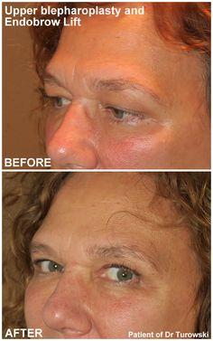 Eyelid Lift, Eyelid Surgery