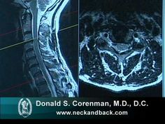 This video--Understanding an MRI of Cervical Nerve Compression--relates to the cervical spine (neck) and is designed for the primary care physician or specialist such as a Chiropractor or Physical Therapist to use to learn how to read and gain an understanding of an MRI of the cervical spine