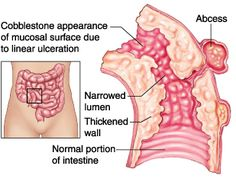 Crohns Disease - Medical Disability Guidelines