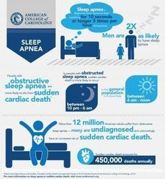 A moderate case of obstructive sleep apnea can significantly increase a person's risk for sudden cardiac death, an often fatal condition where the heart stops beating and must be immediately treated with CPR or an automated external defibrillator, accordi What Causes Sleep Apnea, Causes Of Sleep Apnea, Sleep Apnea Remedies, Snoring Remedies, Trying To Sleep, How To Get Sleep, Napping At Work, Automated External Defibrillator, Sleep Apnea