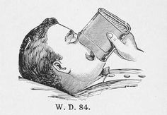 Early ether administration methods  Gauze-filled face-piece used in the same manner as the drip-cloth (by soaking the covering material).