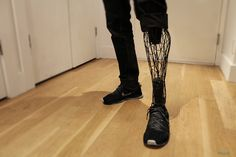 William Root, a designer from New York, created a prosthetic leg that combines both form and function, his signature designing rules.