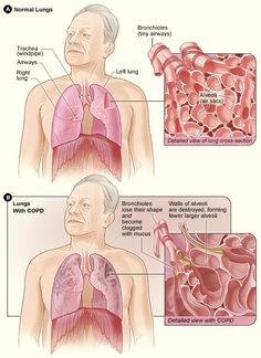 """COPD, or chronic obstructive pulmonary (PULL-mun-ary) disease, is a progressive disease that makes it hard to breathe. """"Progressive"""" means the disease gets worse over time."""