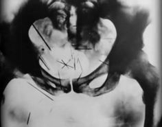 albert fish - over two dozen needles he self-embedded into his pelvis and perineum.