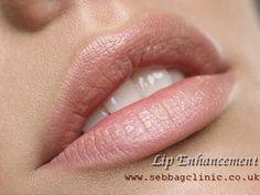 Visit us : www.sebbagclinic.co.uk/#!dermal-fillers/c21xu