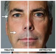 Anti-Wrinkle Cream Before and After Discover how to use anti aging wrinkle creams at thrillive.jeunesseglobal.com
