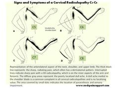 Severe neck pain can result from a cervical radiculopathy depending the cervical nerve root that is affected. Severe Neck Pain, Neck And Back Pain, Hand Therapy, Massage Therapy, Pinched Nerve In Neck, Cervical Disc, Cervical Pain, Cervical Spondylosis, Massage