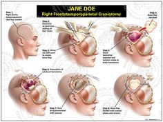 A craniotomy is a Standard Neurosurgery commonly performed in trauma patients who have a subdural hematoma.