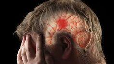Распознавание симптомов инсульта. Как установить инсульт?