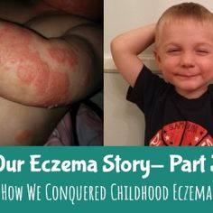 12 Common Foods That Could Be Triggering Your Eczema - EczemaMom Eczema Causes, Severe Eczema, Oils For Eczema, Emu Oil, Varicose Veins, Skin So Soft, Natural Skin, Foods