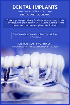 There is growing popularity for nowadays. Find great deals in Dental Costs Australia for the better fees than overseas places like Thailand. Dental Implant Procedure, Dental Surgery, Dental Implants, Wisdom Teeth Removal Cost, Root Canal Dentist, Dental Costs, Dental Hygiene, Teeth Whitening, Thailand