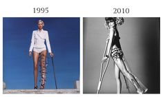 Despite causing controversy, Helmut Newton's fashion editorial featuring casts and braces inspired a similar one 15 years later.