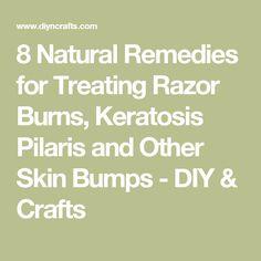 8 Natural Remedies for Treating Razor Burns, Keratosis Pilaris and Other Skin Bumps - DIY & Crafts