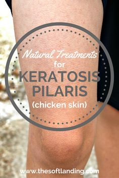 Keratosis Pilaris (chicken skin) is common in about 50% of the population but there are several effective natural remedies that can help. via @thesoftlanding