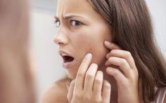 Tipps gegen unreine Haut - Mitesser: 6 Tricks, wie ihr sie für immer loswerdet