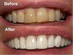 Medizines: How to Get White Teeth in 1 Day Fast With the Best Home White Teeth System on the Market