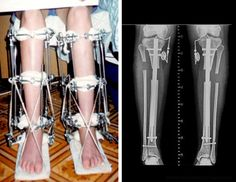 Limb Lengthening, note the broken bones. Bow Legged Correction, 10th Birthday, Face Care, Bodies, Helpful Hints, Science, Note, Legs, Fitness