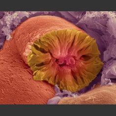 Kidney Tubule (Nephron)