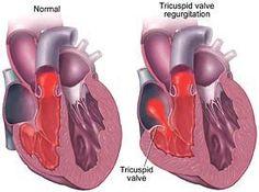 Regurgitation – Symptoms, Surgery & More Tricuspid Valve RegurgitationTricuspid Valve Regurgitation Human Heart Diagram, Bicuspid Aortic Valve, Heart Valve Disease, Tricuspid Valve, Heart Murmur, Heart Valves, Cardiac Nursing, Atrial Fibrillation, Heart Palpitations