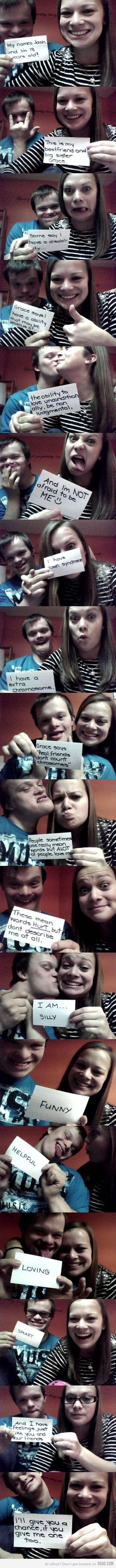 down syndrome :)